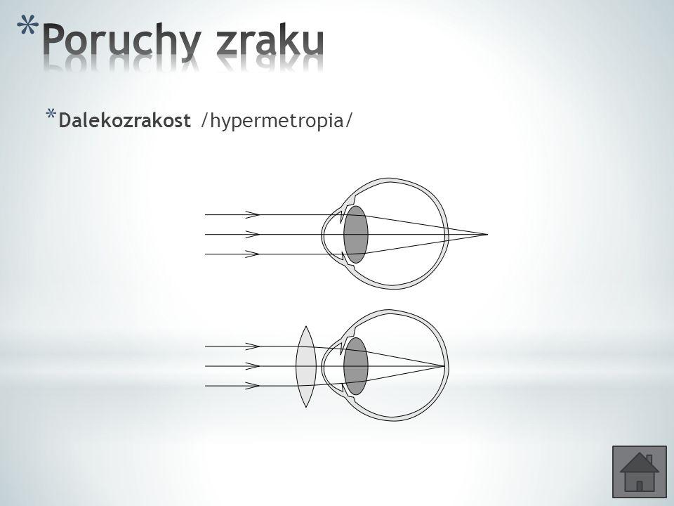 Poruchy zraku Dalekozrakost /hypermetropia/