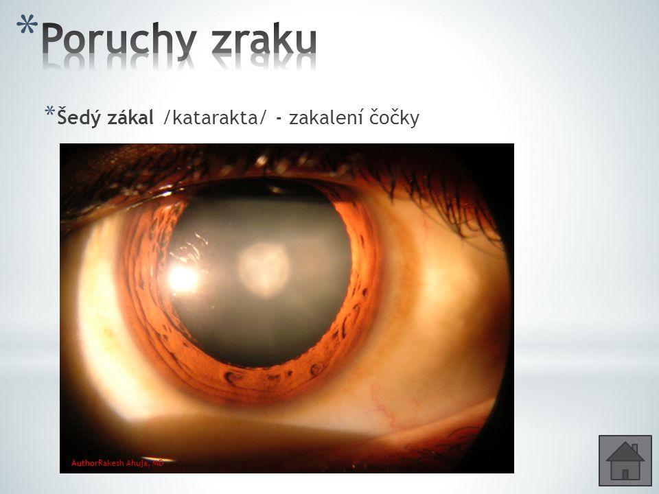 Poruchy zraku Šedý zákal /katarakta/ - zakalení čočky
