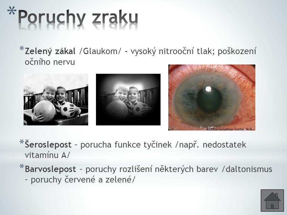 Poruchy zraku Zelený zákal /Glaukom/ - vysoký nitrooční tlak; poškození očního nervu.