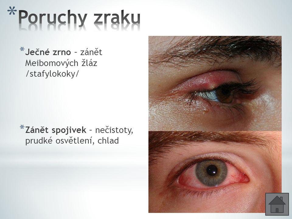 Poruchy zraku Ječné zrno – zánět Meibomových žláz /stafylokoky/