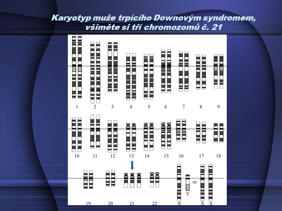 Karyotyp muže trpícího Downovým syndromem, všiměte si tří chromozomů č