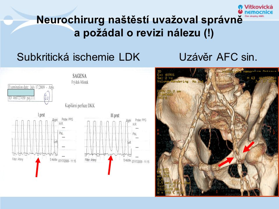 Neurochirurg naštěstí uvažoval správně a požádal o revizi nálezu (!)