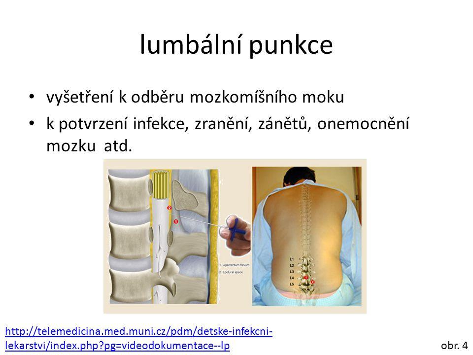 lumbální punkce vyšetření k odběru mozkomíšního moku