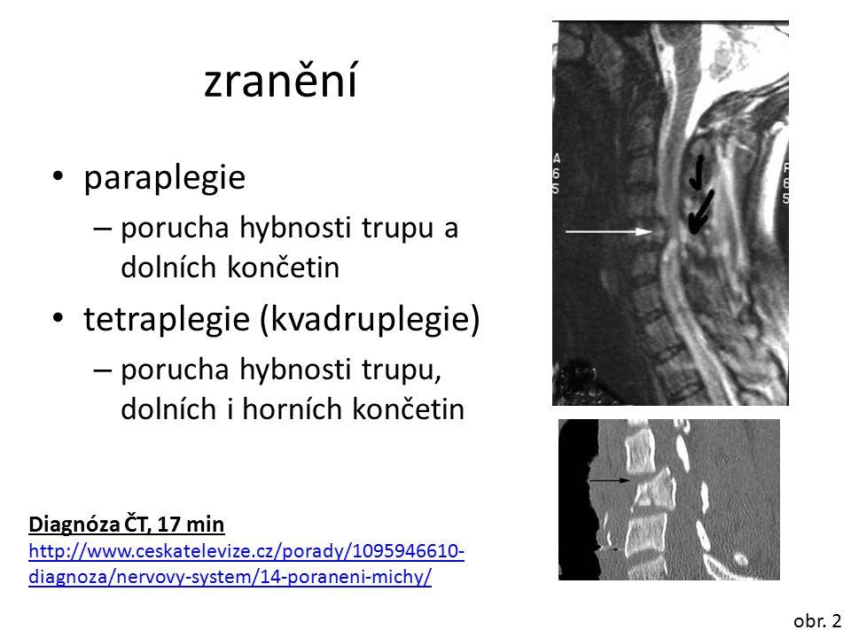 zranění paraplegie tetraplegie (kvadruplegie)