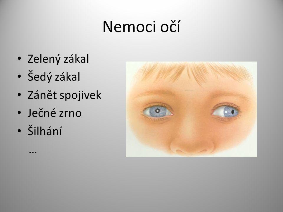 Nemoci očí Zelený zákal Šedý zákal Zánět spojivek Ječné zrno Šilhání …