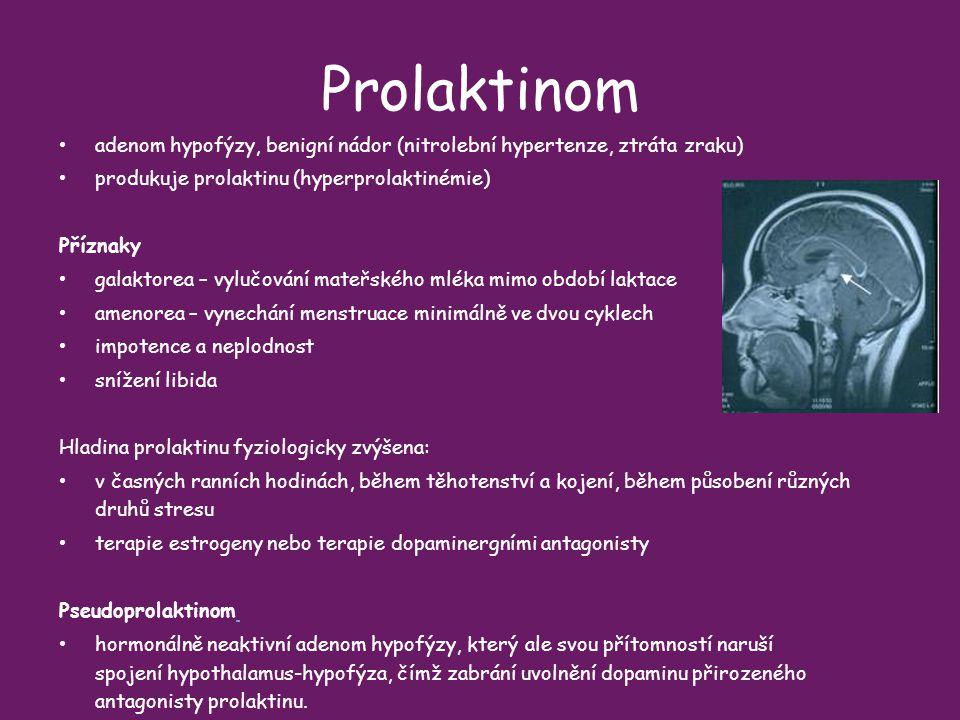 Prolaktinom adenom hypofýzy, benigní nádor (nitrolební hypertenze, ztráta zraku) produkuje prolaktinu (hyperprolaktinémie)