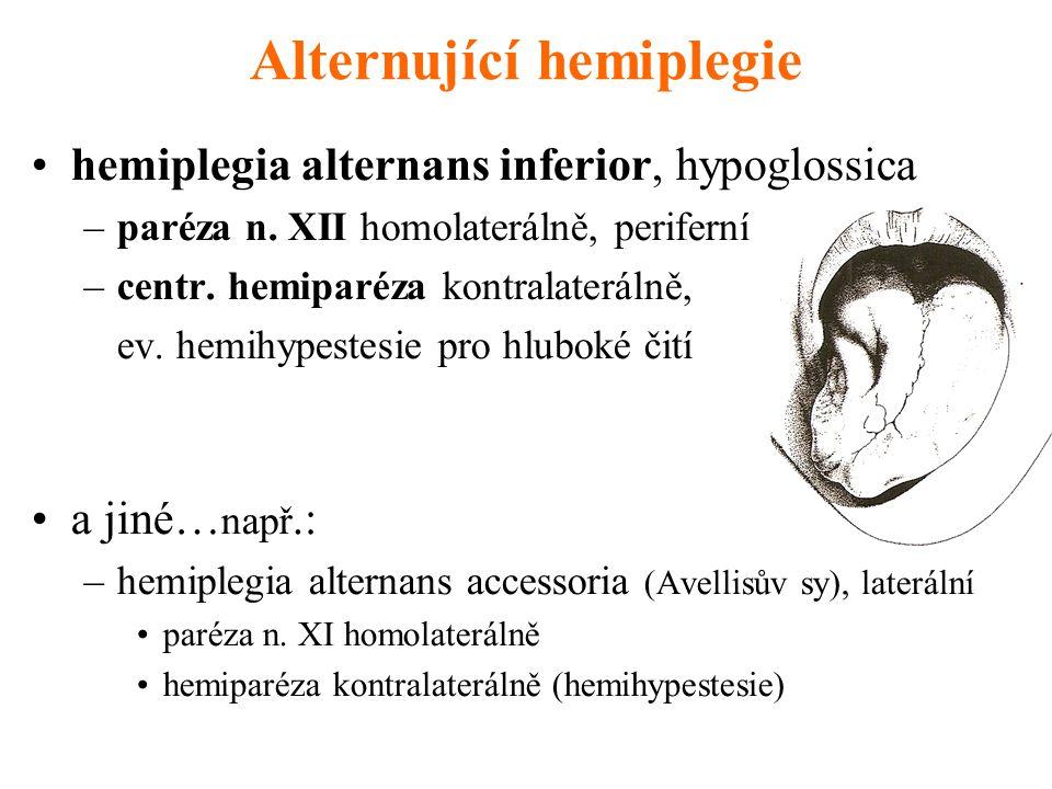 Alternující hemiplegie