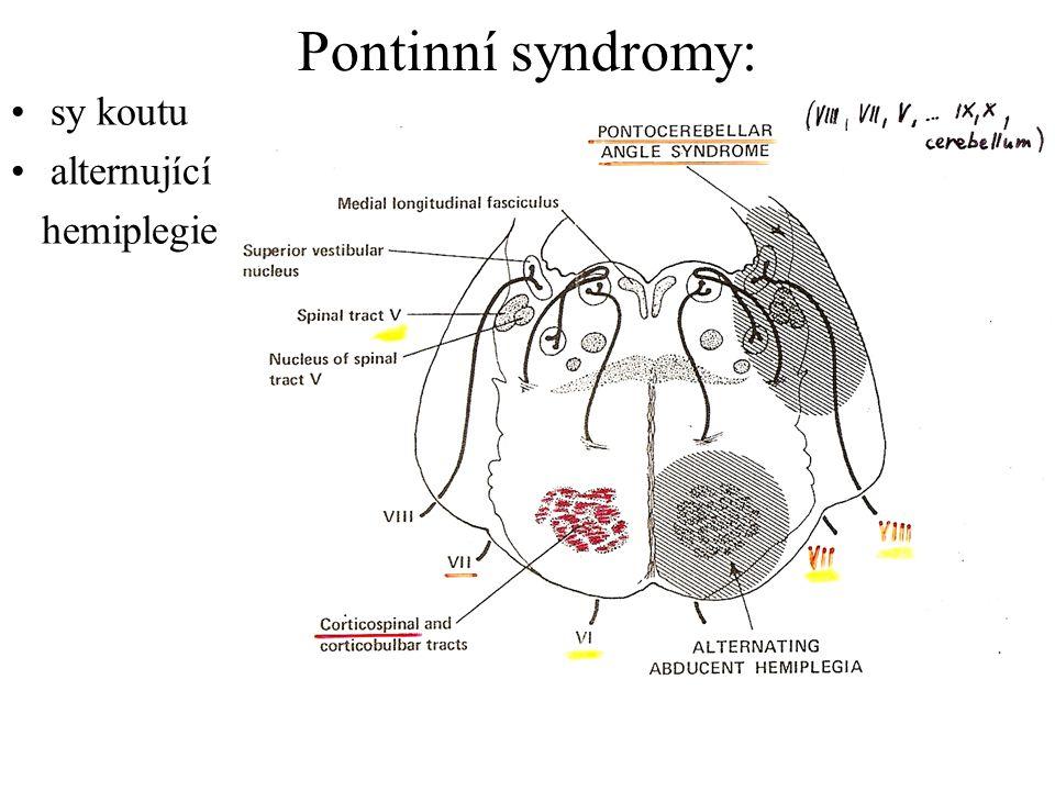 Pontinní syndromy: sy koutu alternující hemiplegie