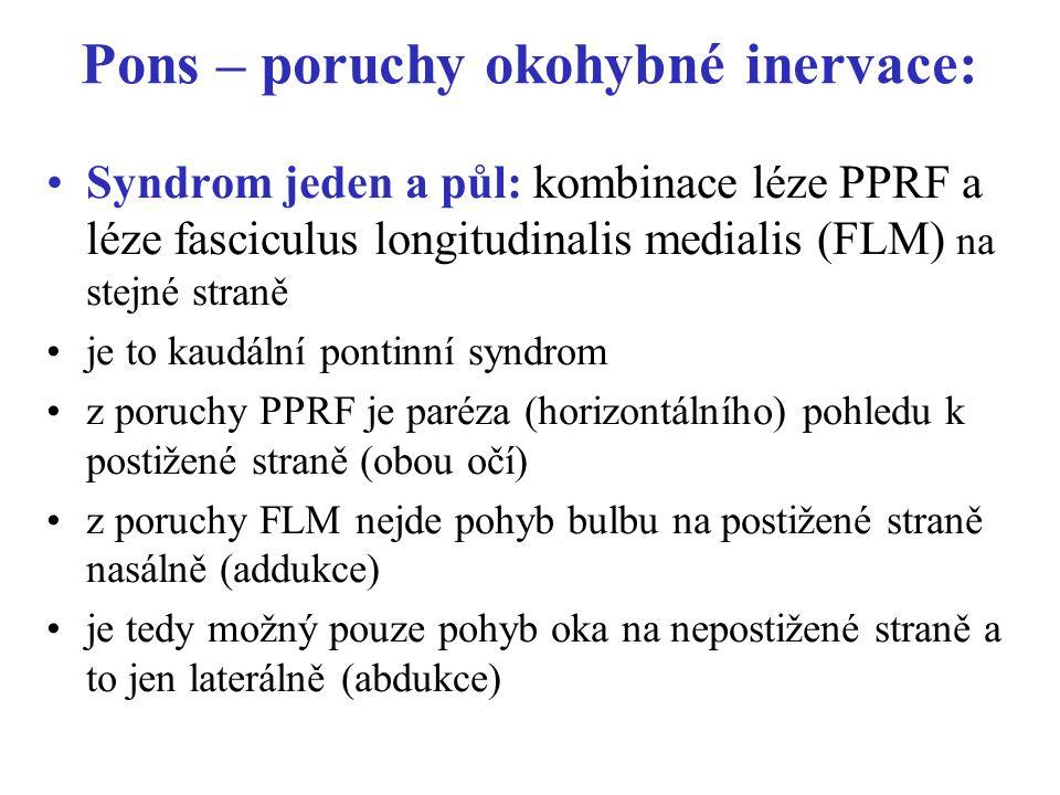 Pons – poruchy okohybné inervace: