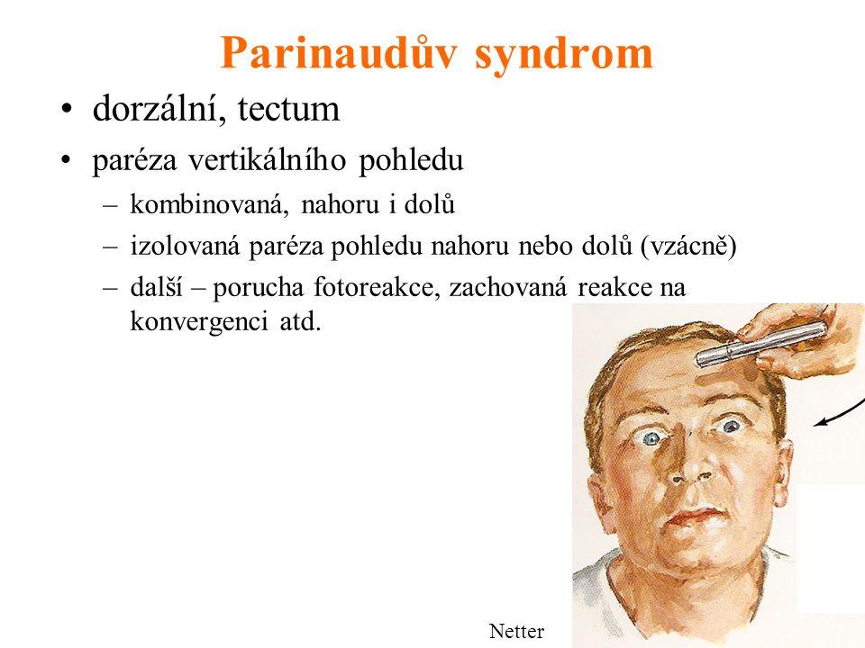 Parinaudův syndrom dorzální, tectum paréza vertikálního pohledu
