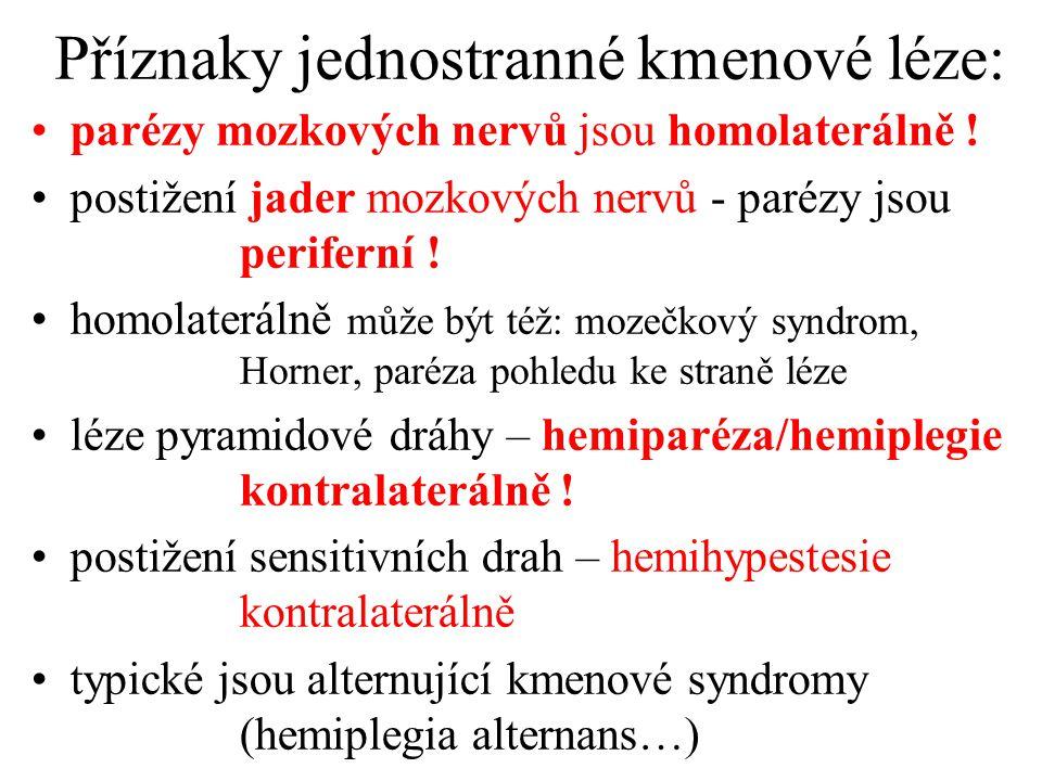 Příznaky jednostranné kmenové léze: