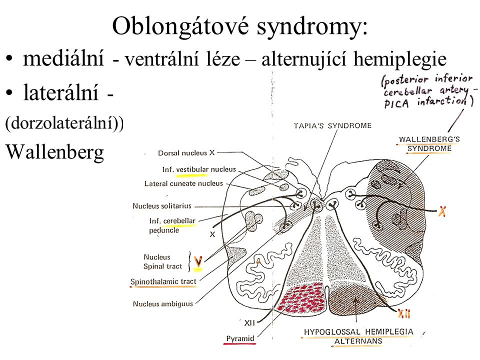 Oblongátové syndromy: