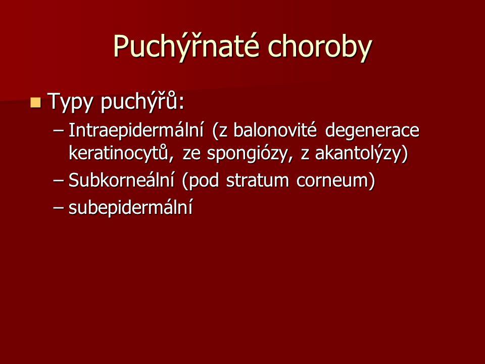 Puchýřnaté choroby Typy puchýřů: