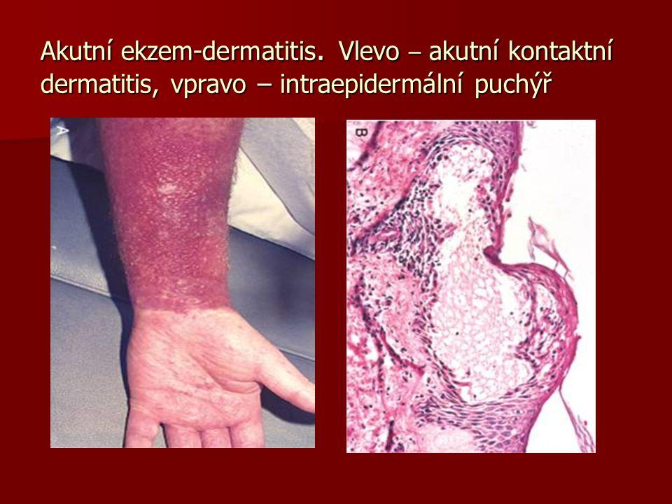 Akutní ekzem-dermatitis