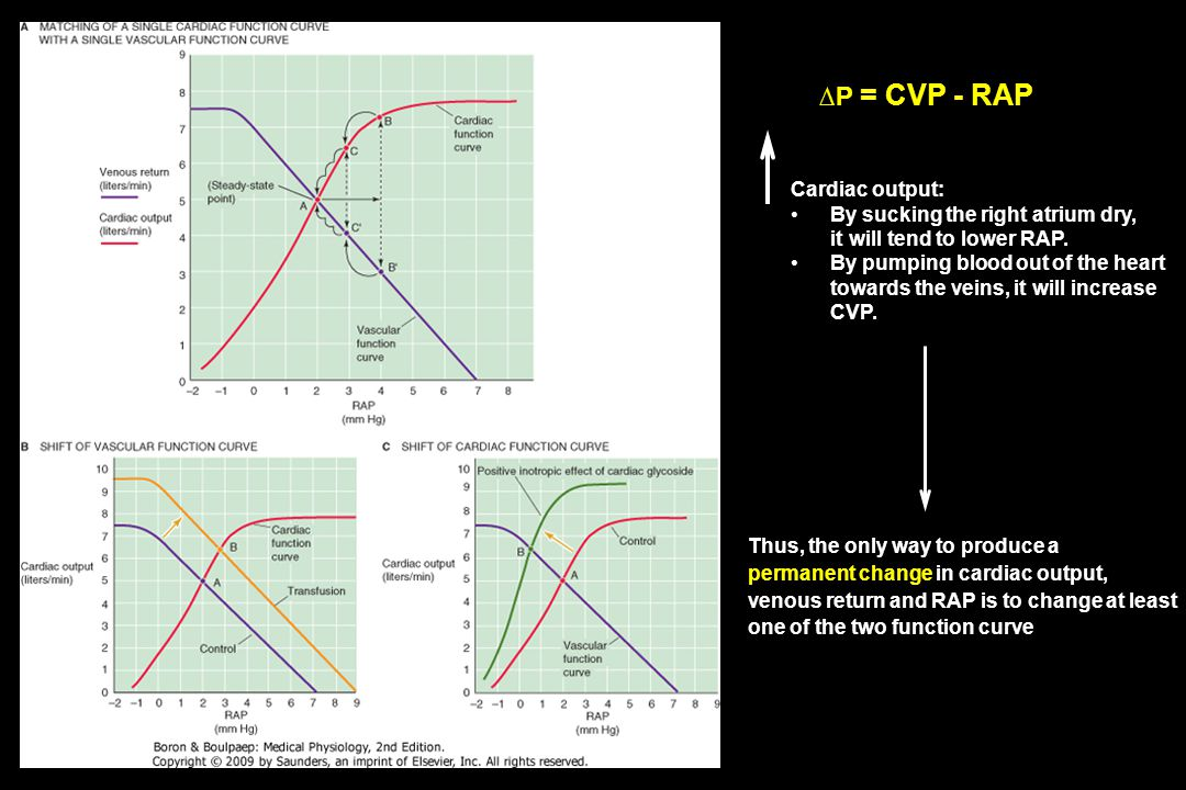 ∆P = CVP - RAP Cardiac output: By sucking the right atrium dry,