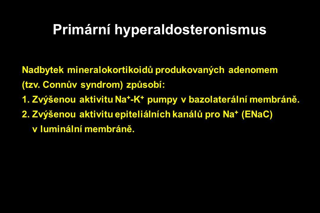 Primární hyperaldosteronismus