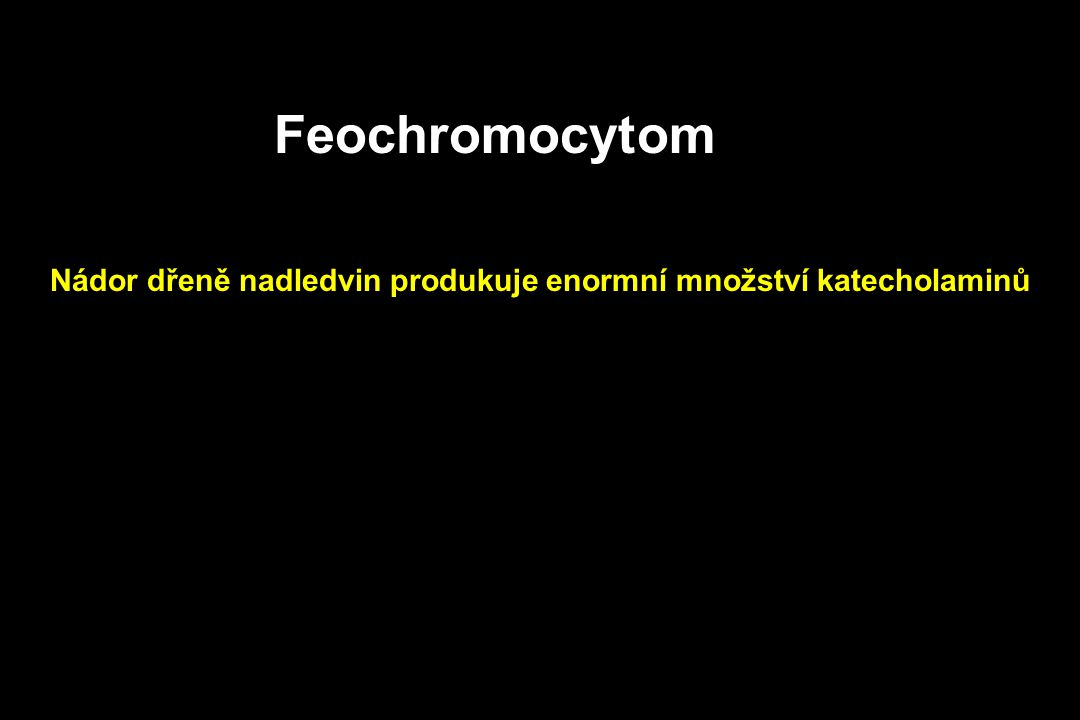 Feochromocytom Nádor dřeně nadledvin produkuje enormní množství katecholaminů
