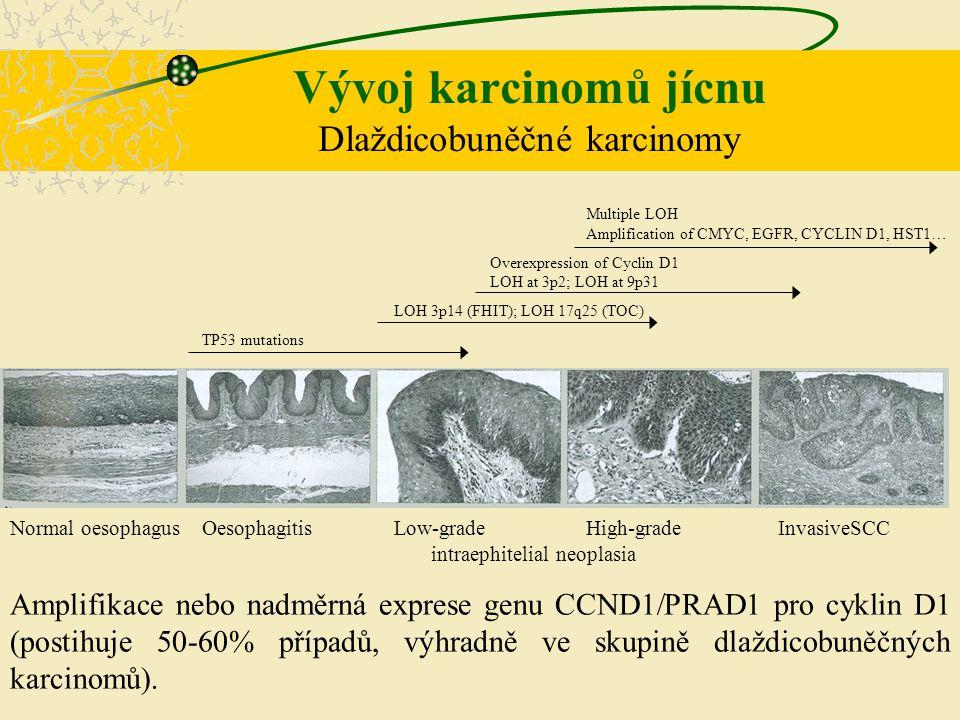 Vývoj karcinomů jícnu Dlaždicobuněčné karcinomy