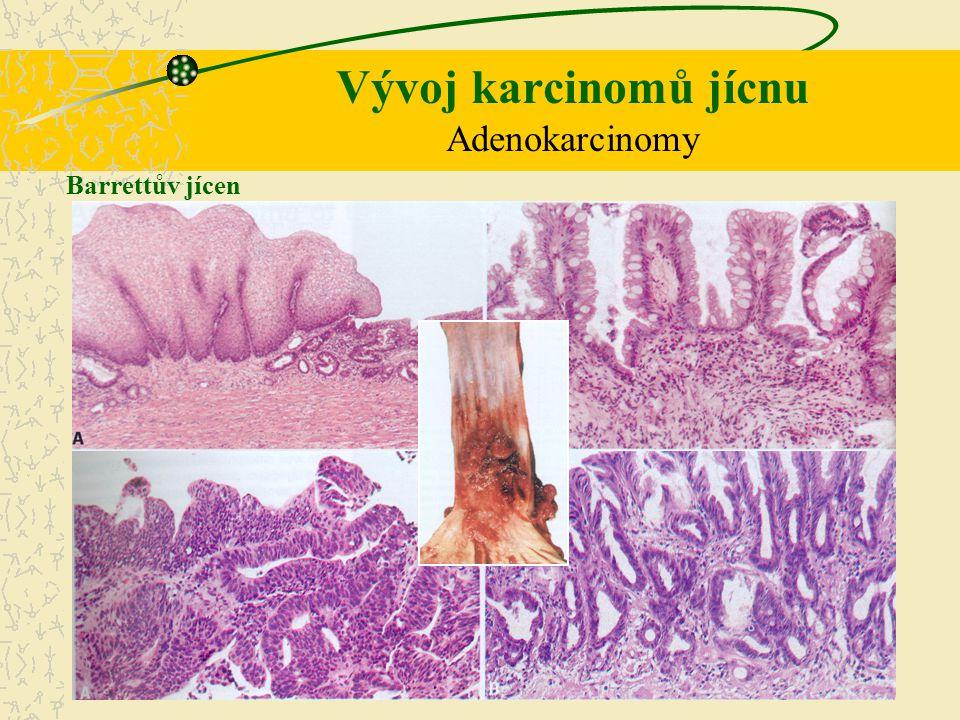 Vývoj karcinomů jícnu Adenokarcinomy