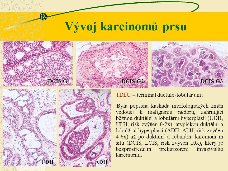 Vývoj karcinomů prsu DCIS G1 DCIS G2 DCIS G3