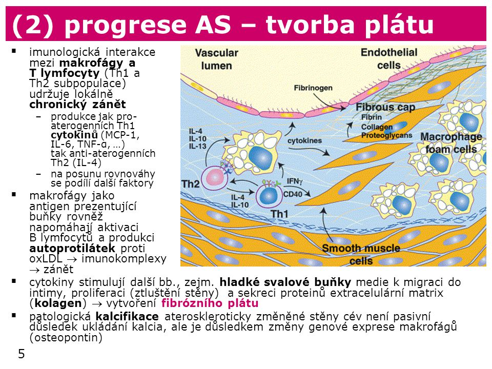 (2) progrese AS – tvorba plátu
