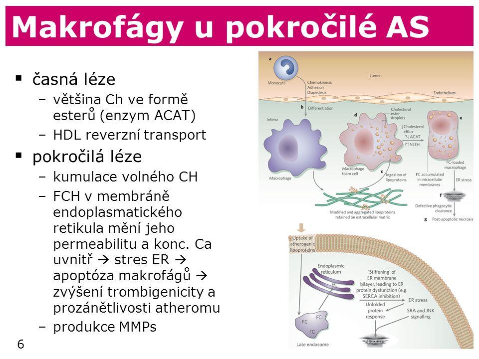 Makrofágy u pokročilé AS