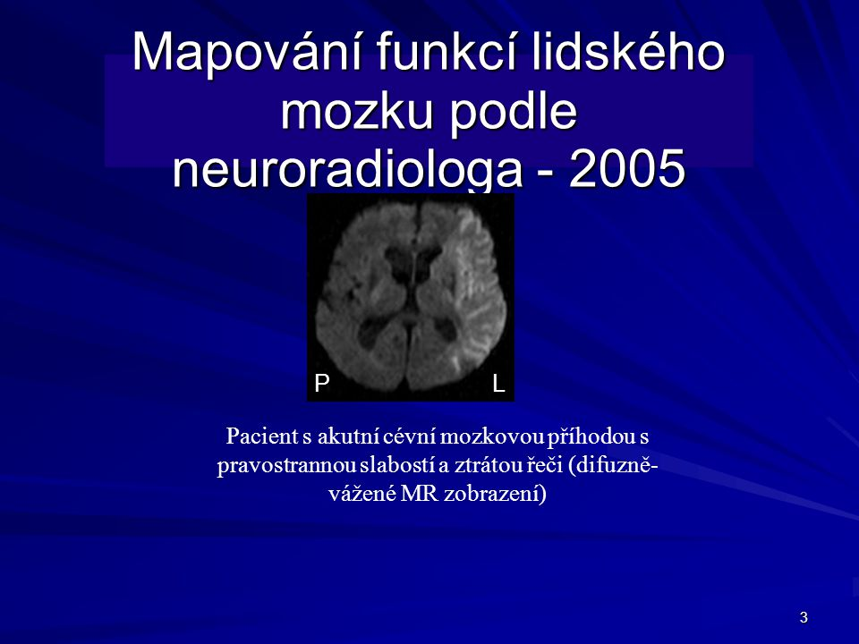 Mapování funkcí lidského mozku podle neuroradiologa - 2005