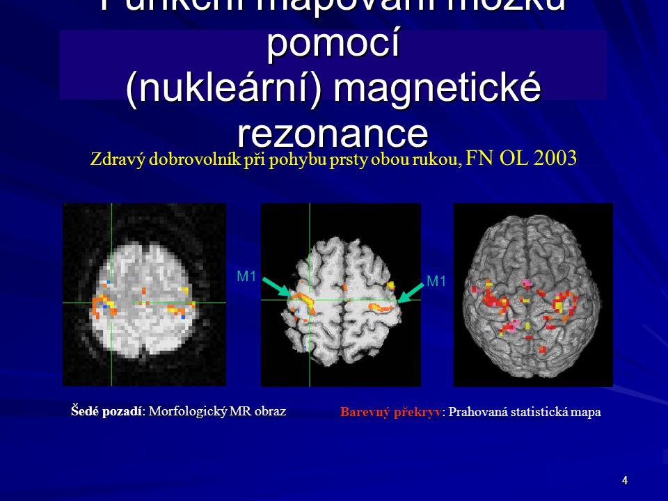 Funkční mapování mozku pomocí (nukleární) magnetické rezonance