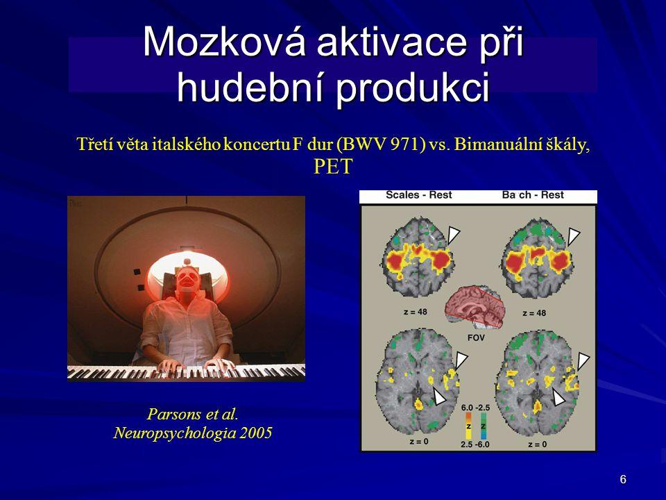 Mozková aktivace při hudební produkci