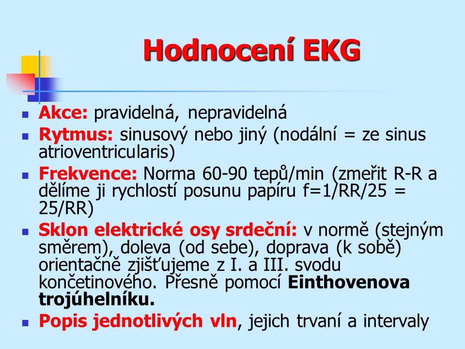 Hodnocení EKG Akce: pravidelná, nepravidelná