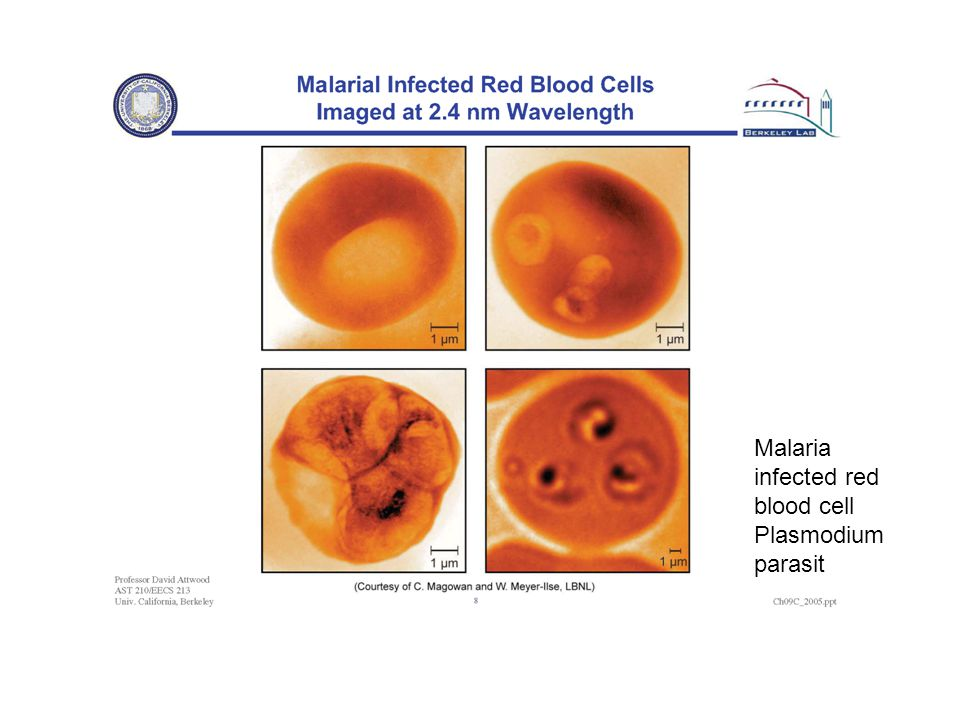 Malaria infected red blood cell