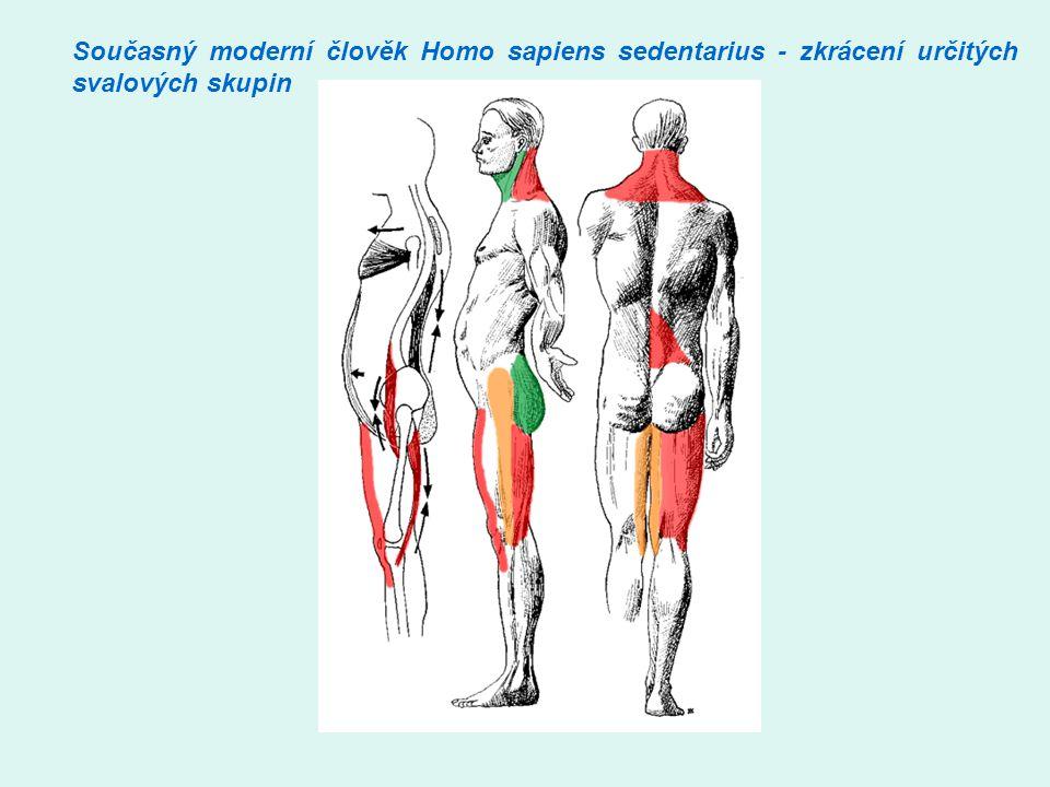 Současný moderní člověk Homo sapiens sedentarius - zkrácení určitých svalových skupin