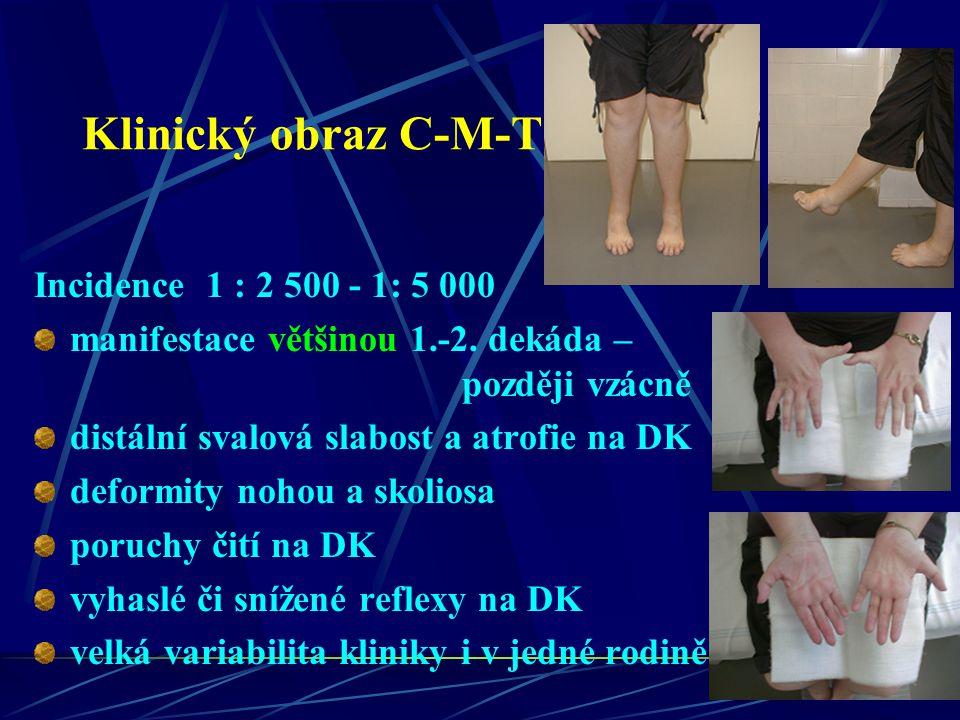 Klinický obraz C-M-T Incidence 1 : 2 500 - 1: 5 000