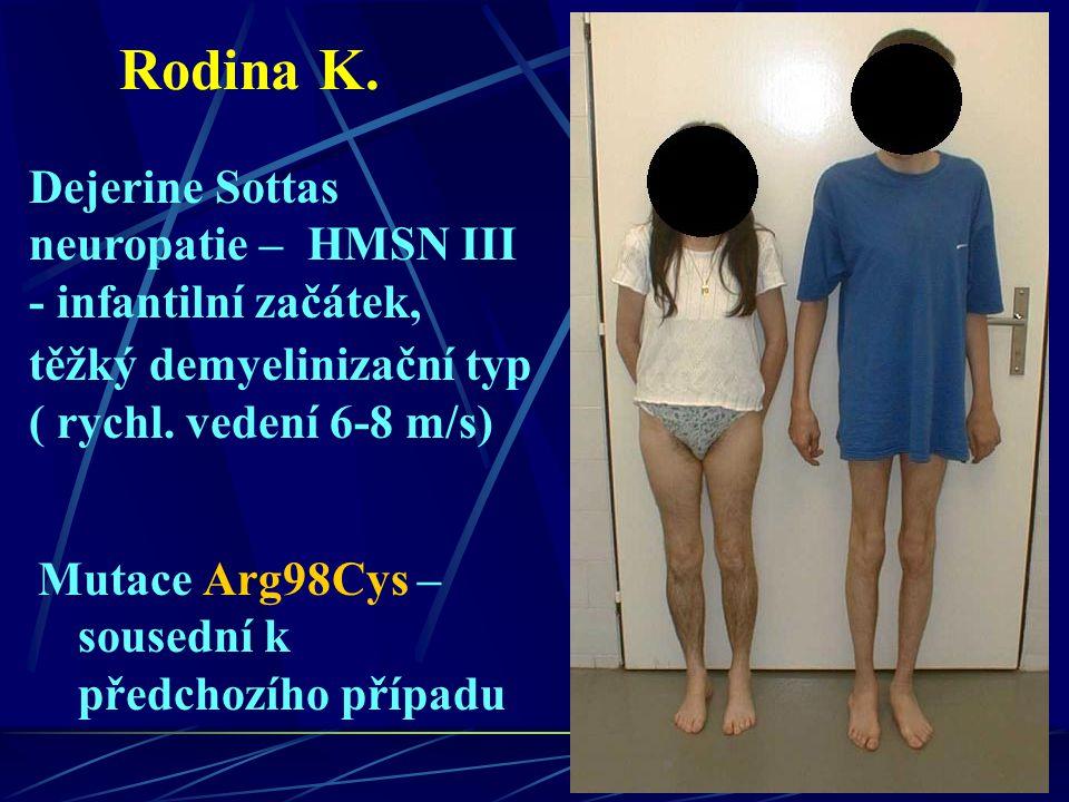 Rodina K. Dejerine Sottas neuropatie – HMSN III - infantilní začátek, těžký demyelinizační typ ( rychl. vedení 6-8 m/s)
