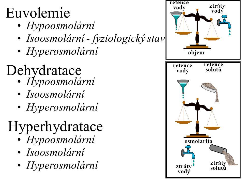Euvolemie Dehydratace Hyperhydratace Hypoosmolární