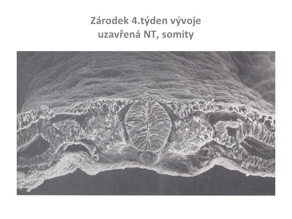 Zárodek 4.týden vývoje uzavřená NT, somity