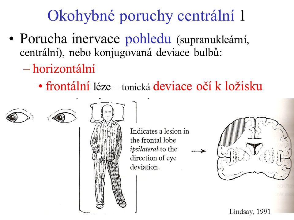 Okohybné poruchy centrální 1