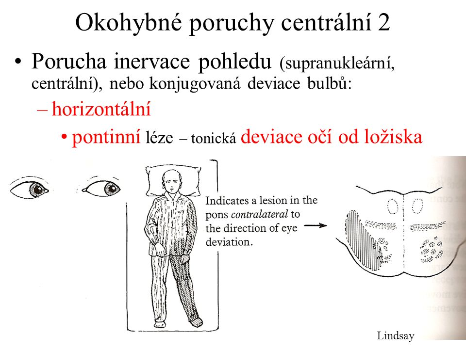 Okohybné poruchy centrální 2