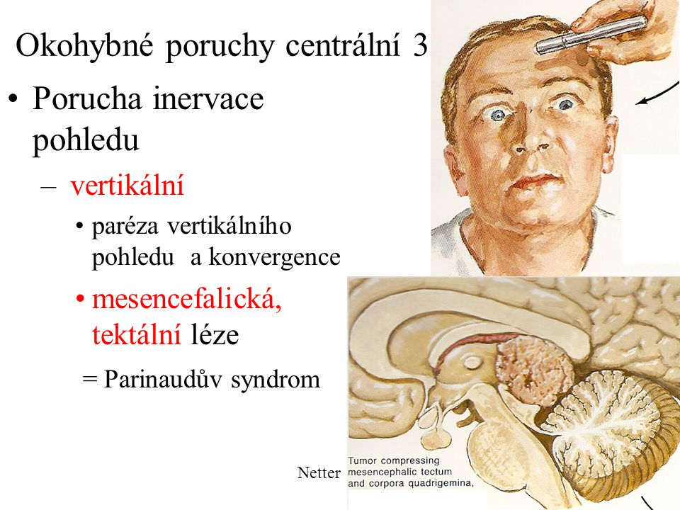 Okohybné poruchy centrální 3