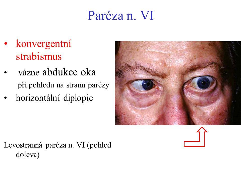 Paréza n. VI konvergentní strabismus vázne abdukce oka