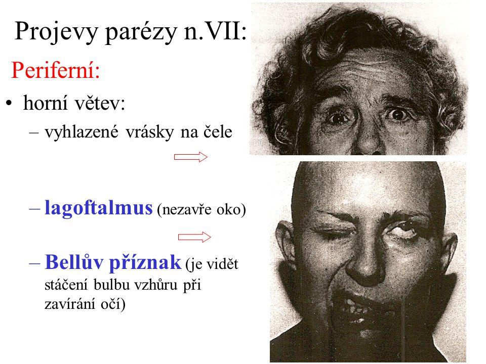 Projevy parézy n.VII: Periferní: horní větev:
