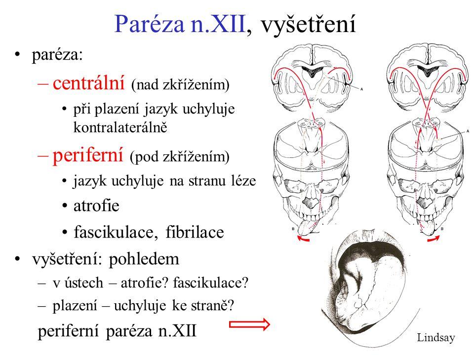 Paréza n.XII, vyšetření centrální (nad zkřížením)