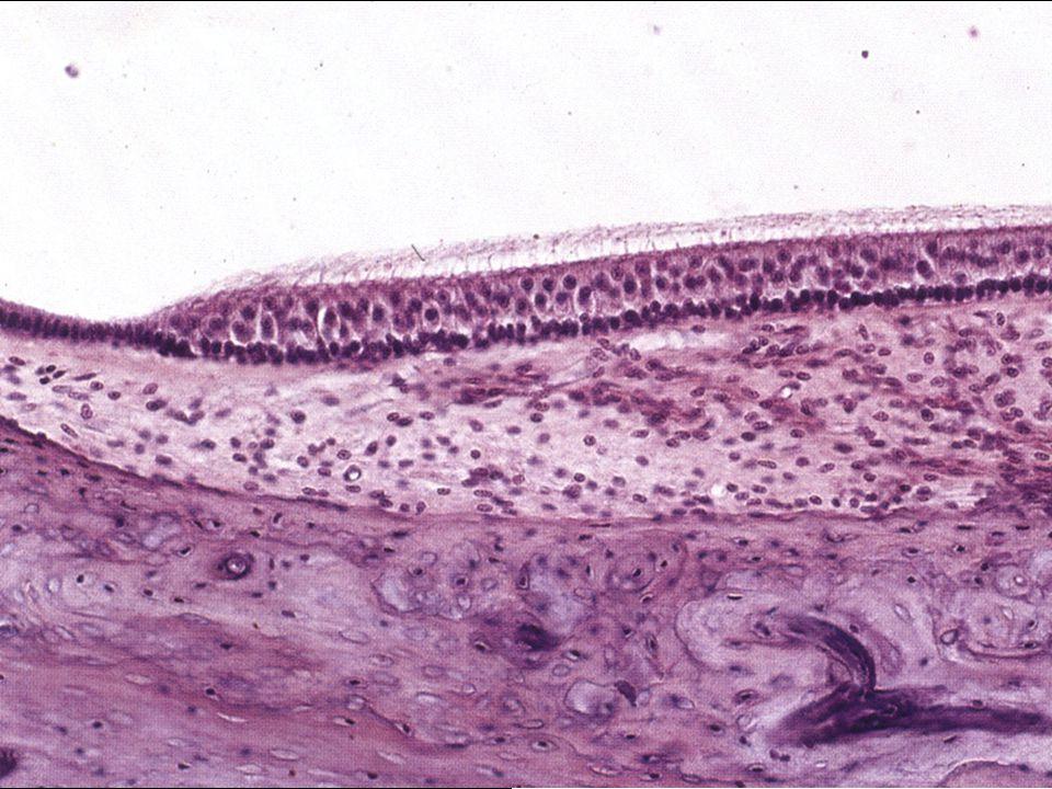 Vláskové buňky dva typy na apikálním povrchu: 1 kinocilie