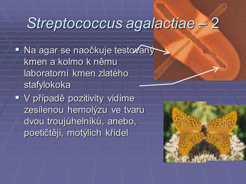 Streptococcus agalactiae – 2