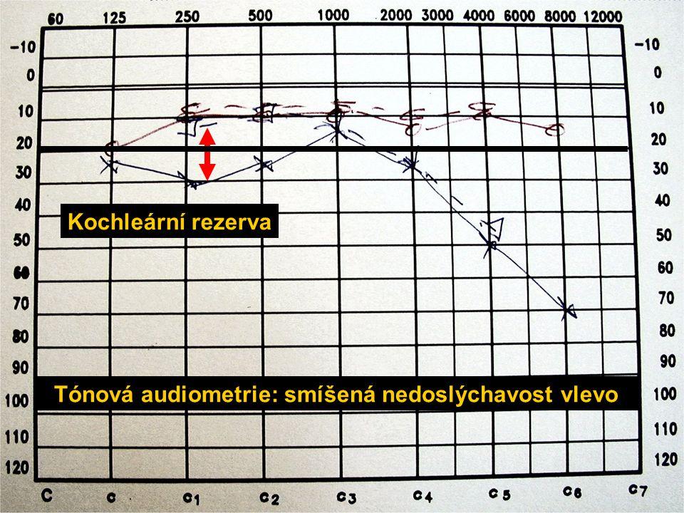 Tónová audiometrie: smíšená nedoslýchavost vlevo