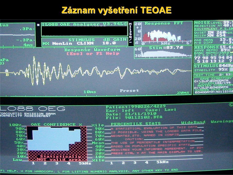 Záznam vyšetření TEOAE