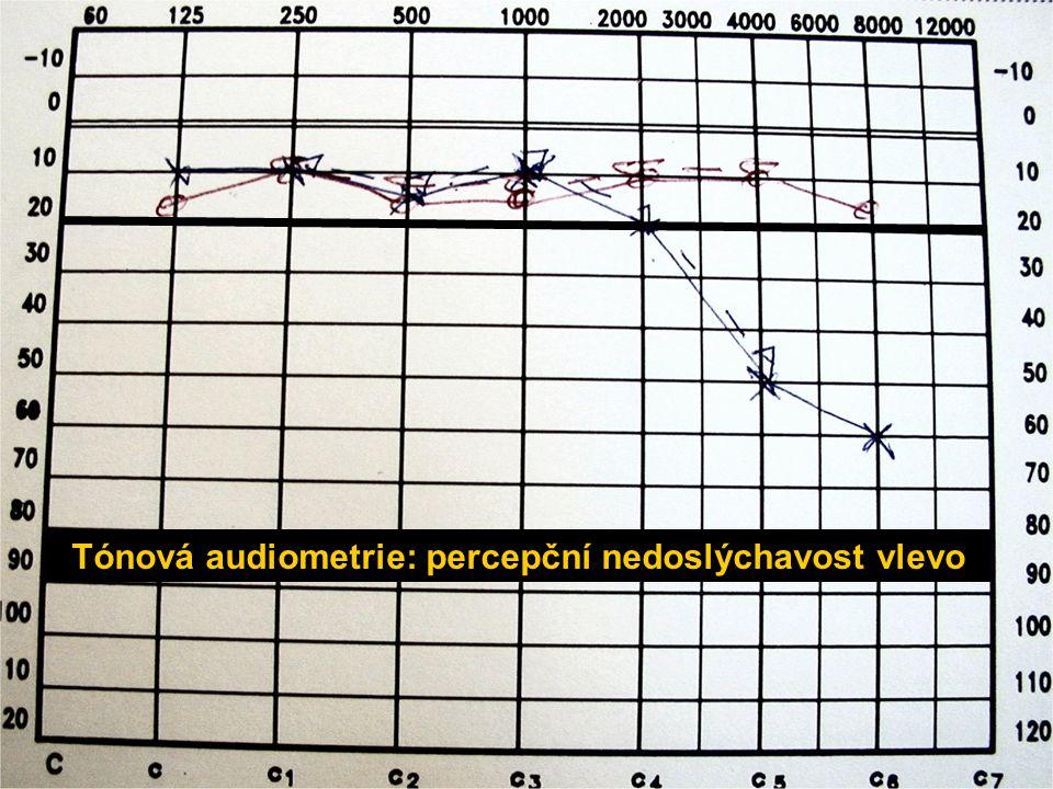 Tónová audiometrie: percepční nedoslýchavost vlevo