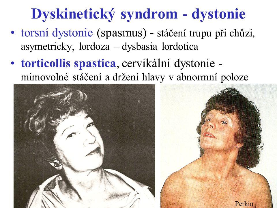 Dyskinetický syndrom - dystonie