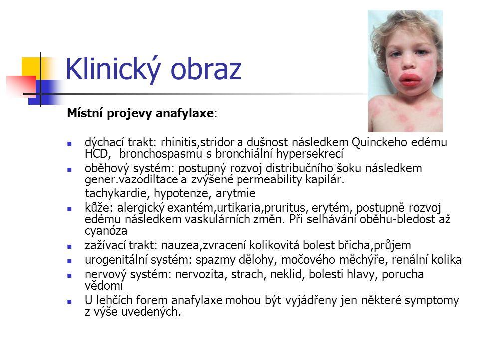 Klinický obraz Místní projevy anafylaxe: