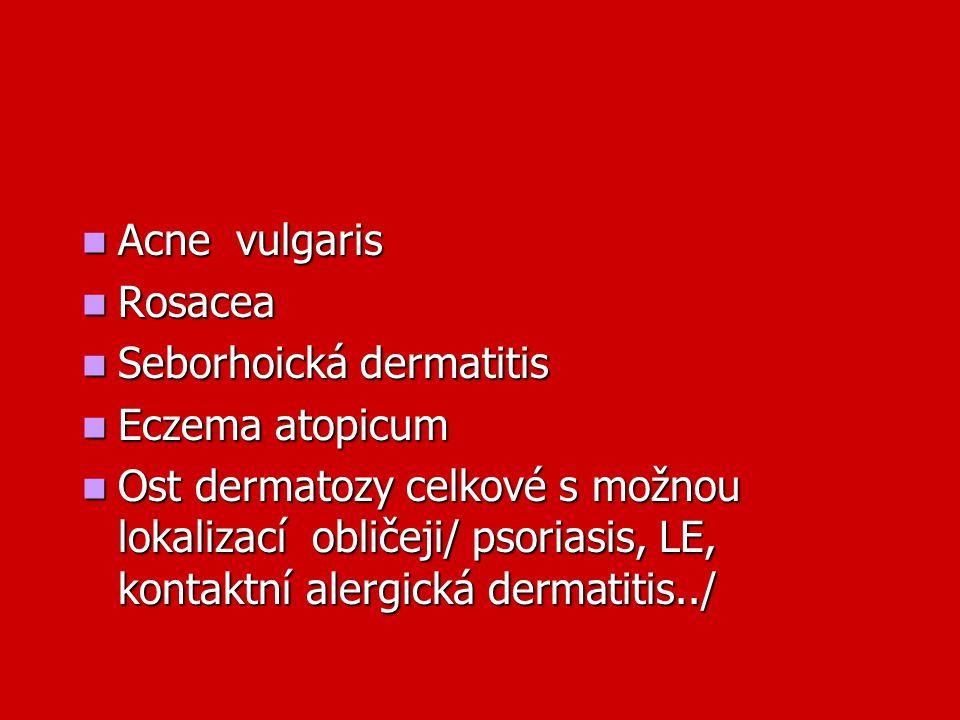 Acne vulgaris Rosacea. Seborhoická dermatitis. Eczema atopicum.